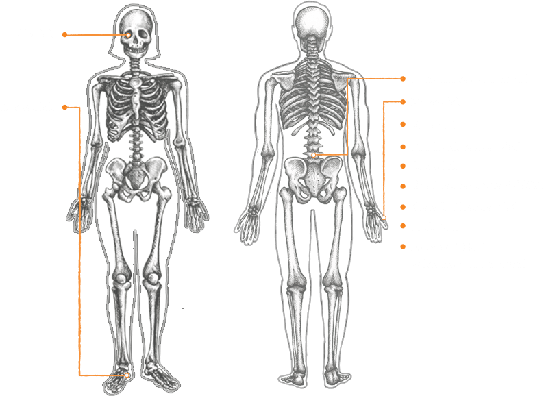 A Diagram of the SpA Features Shown on the Human Body
